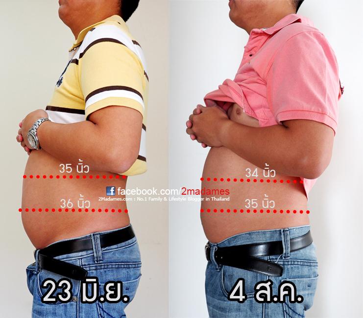 ฉีด Meso Fat, Mesoestetic, รีวิว, pantip, wongnai, wongnai beauty, ดั้งโด่ง, ฉีดสลายไขมัน, เมโส, ราคา, เจ็บมั้ย