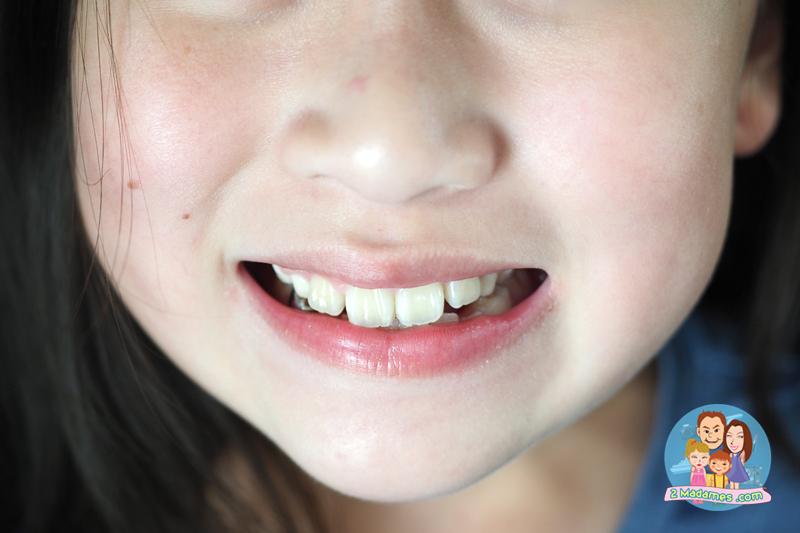 EF LINE,อีเอฟไลน์,จัดฟันเด็กเล็ก,คืออะไร,รีวิว,pantip,ราคา,เจ็บไหม,ราคา,วิภาพรคลินิกทันตกรรม เพชรเกษม 81